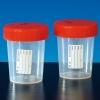 Urinbecher mit Schraubdeckel 180 ml, innen keimreduziert (200 Stück)